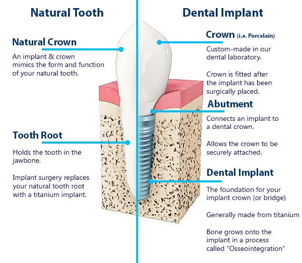 dental implant vs natural tooth : definition of natural crown, crown, abutment, tooth root, dental implant