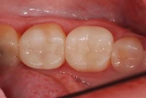 Patient after biomimetic treatment