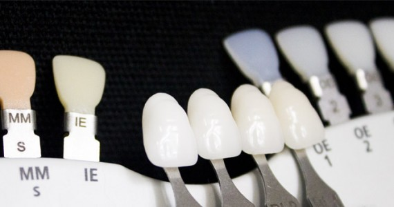 What Is White & How Do Dentists Find It?