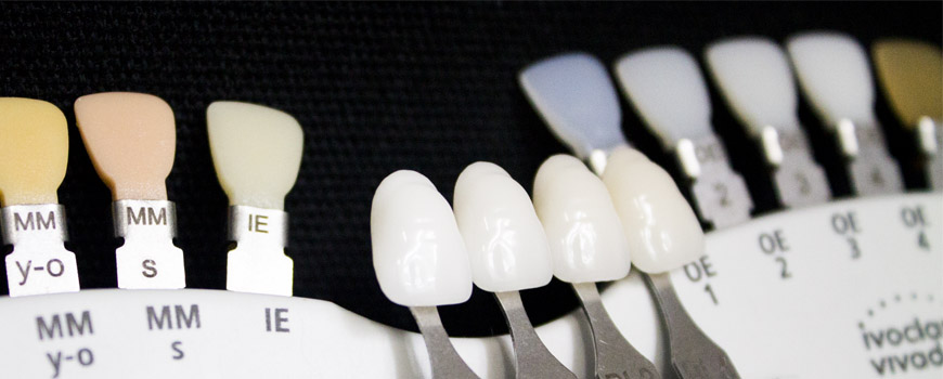 Shade-Taking : What Is White <br>& How Do Dentists Find It?