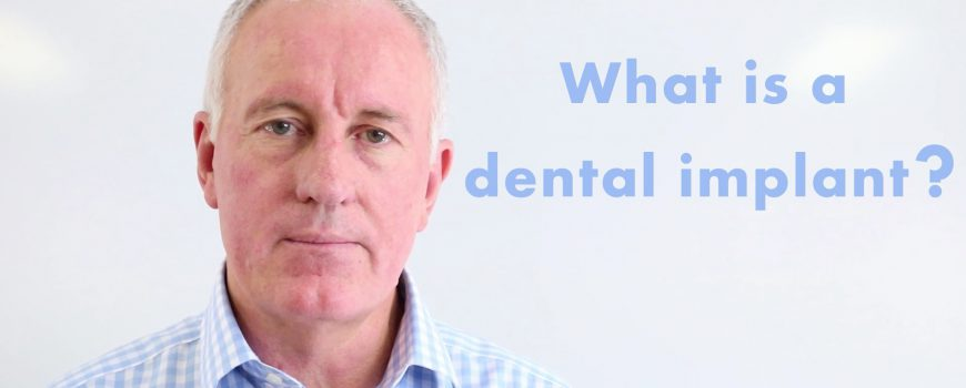 Dental Implants Video | What Are Dental Implants?