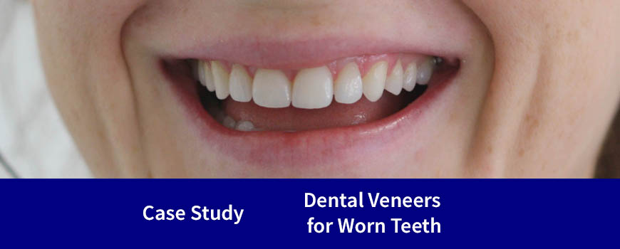 Case Study | Dental Veneers for Worn Teeth (Dr David Tuffley & Studio 12's Lyndon Hays)