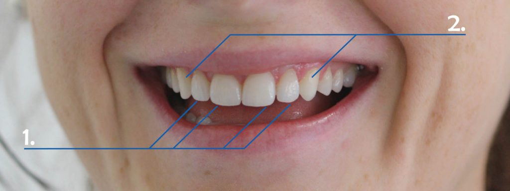 Dental Veneers (Porcelain Veneers) for Worn Teeth Annotated After Picture